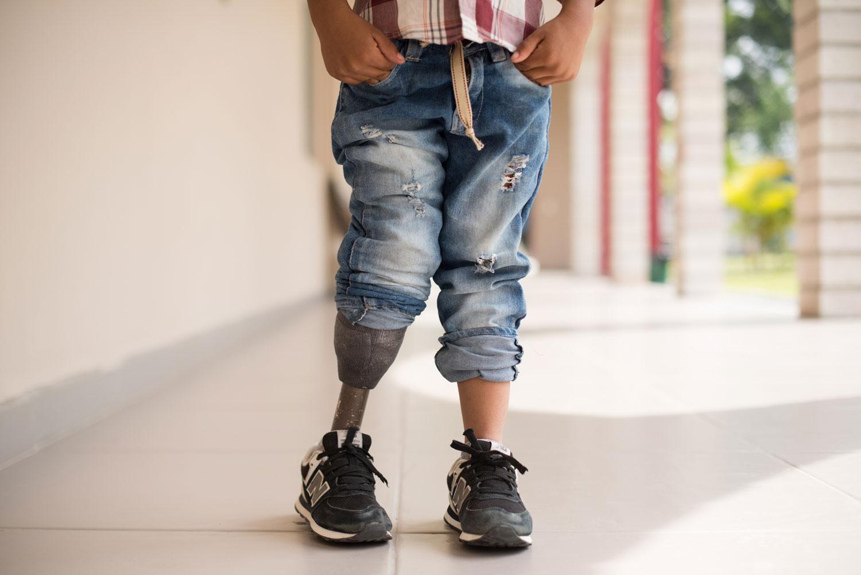 image of a boy's prosthetic leg