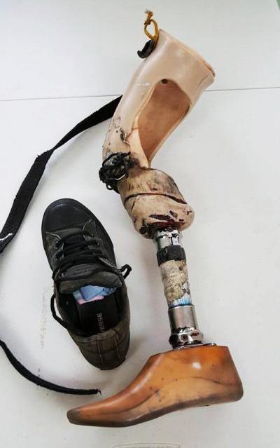 image of a used prosthetic leg